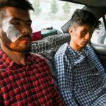 निर्घात कुटपिटपछि तालिबानले पत्रकारलाई भन्यो- भाग्यमानी रैछस्, तेरो टाउको काटिएन